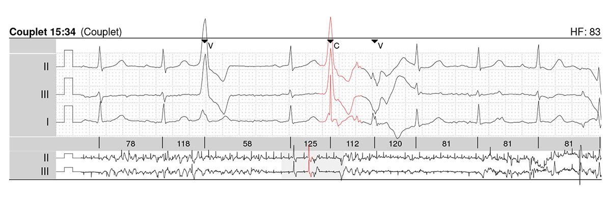 langzeit-EKG-couplet