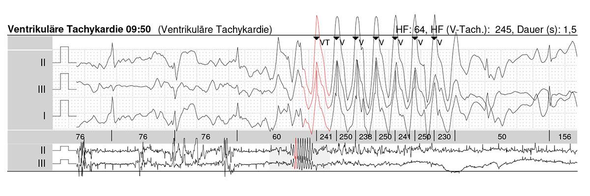 langzeit-EKG-tachykardie
