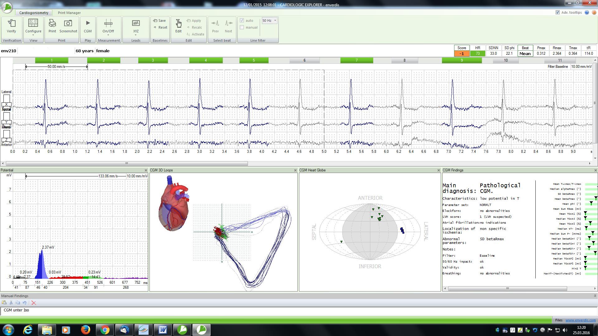Dreidimensionales-EKG