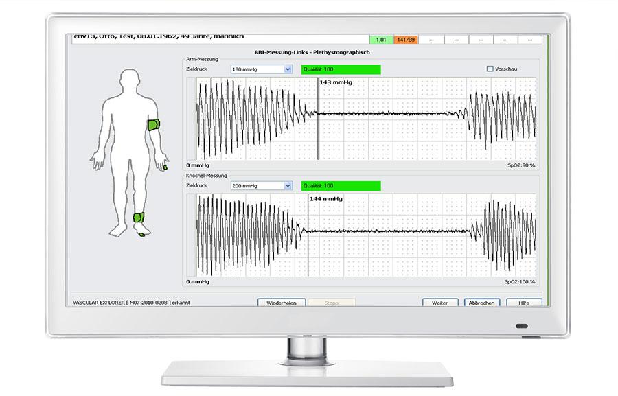 Vascular Explorer Messung